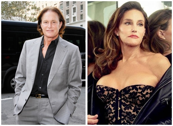 before and after bruce caitlyn